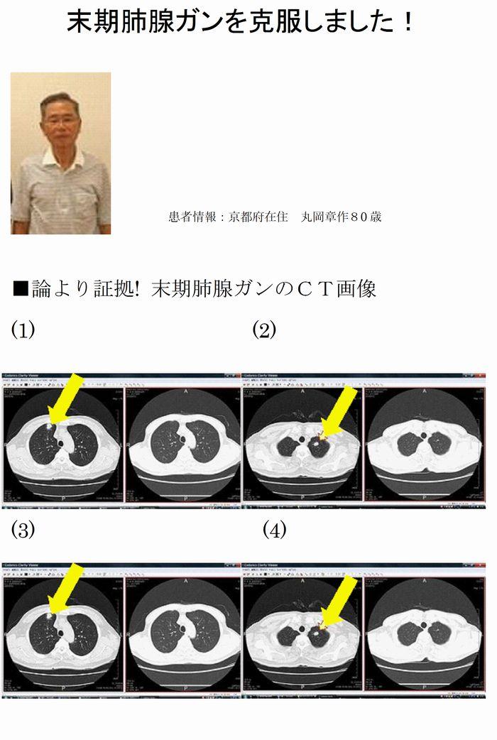末期肺腺ガン
